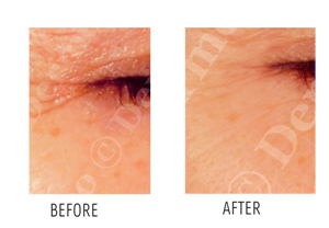 Photo Rejuvenation with Intense Pulse Light (IPL)